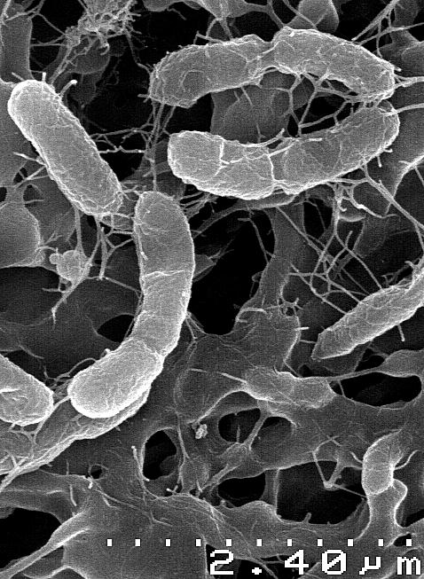 Venenivibrio stagnispumantis, especie de microorganismo capaz de alimentarse de Hidrógeno.  Dadas las condiciones adecuadas de temperatura y acidez este organismo de la Tierra podría vivir en el interior de Enceladus.  Crédito: Adrian Hetzer
